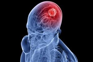 Beyin Tümörlerinde umut veren yeni tedavi