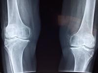 Avrupa Ortopedi Cerrahisi- Doç.Dr. Serhat Mutlu-Diz Filmi (2)